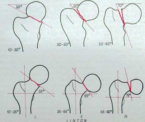 Классификация переломов шейки бедра