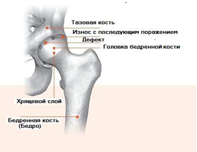 эндопротез тазобедренных суставов