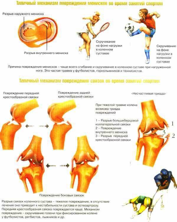 травмы суставов профилактика