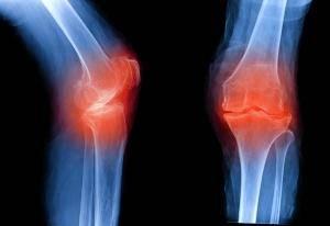 Атлас укладок при рентгенологических исследованиях (Кишковский А.Н.) - Глава 5 Часть 7