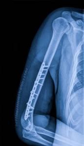 Изображение - Аксиальная проекция плечевого сустава skelet-i-soedineniya-svobodnoy-verkhney-konechnosti_plechevoy-sustav