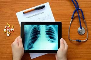 Методики рентгенологического исследования пищевода