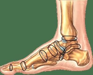 подвывих в плюсне-фаланговом суставе 1 пальца стопы