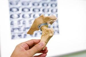 Противопоказания к операции при переломе шейки бедра