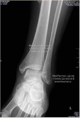 Как выглядит перелом наружной лодыжки на рентгене