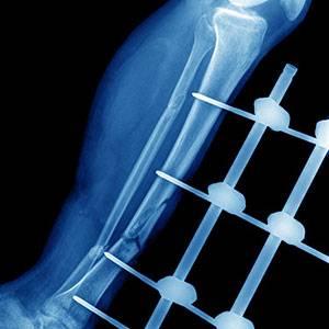 Врожденное укорочение конечности i ложными суставами фото кистевого сустава у лабрадора