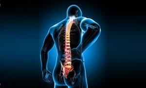 Иммобилизация переломов позвоночника гипсовым корсетом, перелом позвоночник компрессионный нарушение отдел боль мозг спинной травма неврологический компрессионный, перелом, позвоночника, судебная медицина, судебно-медицинская экспертиза, Компресионный перелом позвоночника, механизм диагностика, рентген позвоночника, спинной мозг, позвоночно-спинальная травма, травматическая болезнь, диагностика, лечение, реабилитация, трансплантация, лечебная физкультура