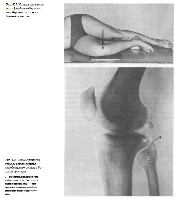Тангенциальная проекция коленных суставов