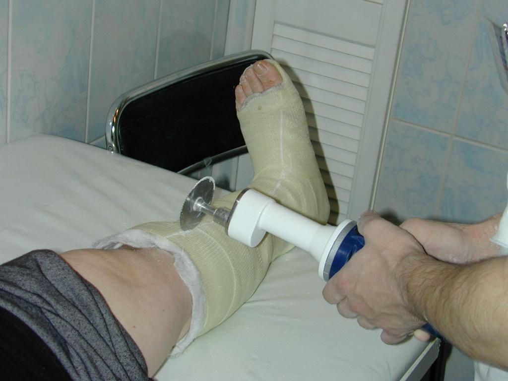 Как правильно снять гипс с ноги в домашних условиях