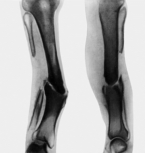 ложный сустав седалищной кости
