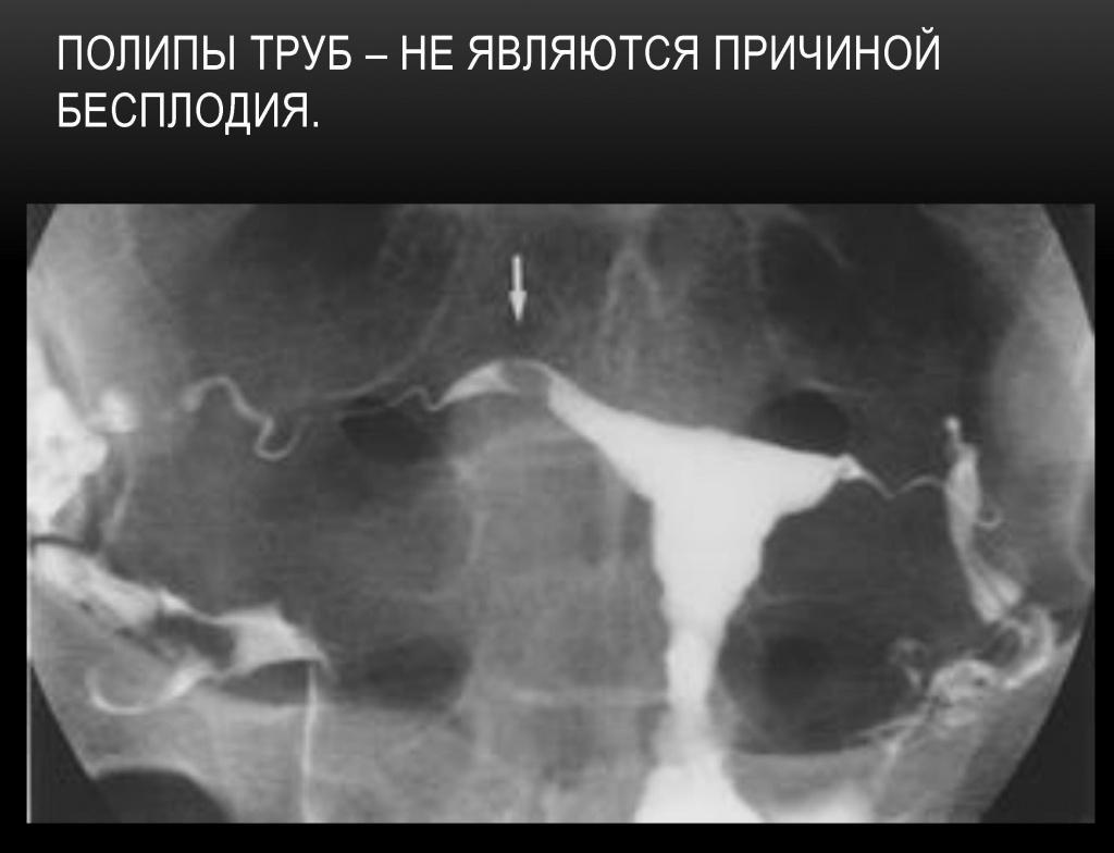 снимок проходимых труб фото комплект