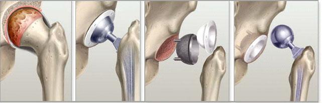 Изображение - Обувь после эндопротезирования тазобедренного сустава endoprottaz