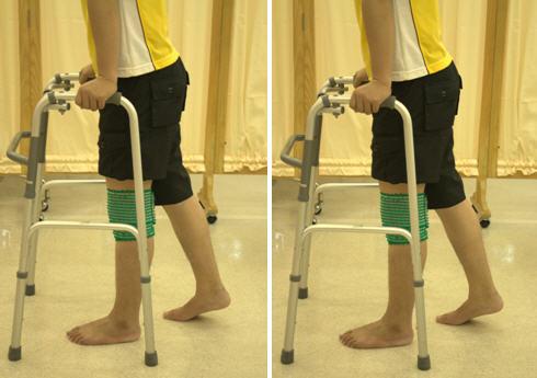 средства реабилитации после эндопротезирования тазобедренного сустава в