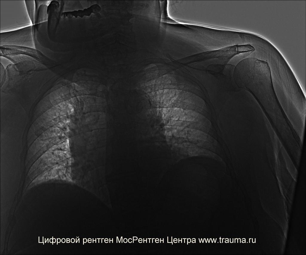Эмфизема легких на рентгене