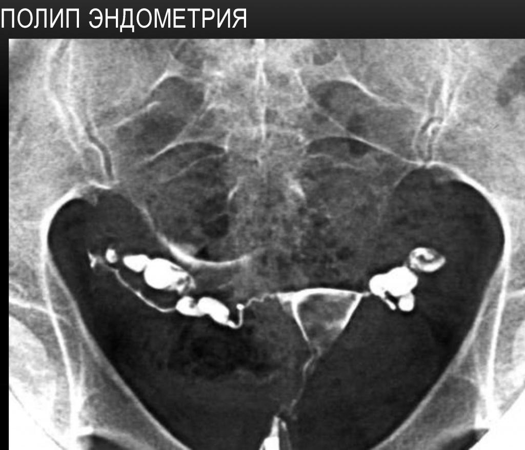дюфастон полип эндометрия
